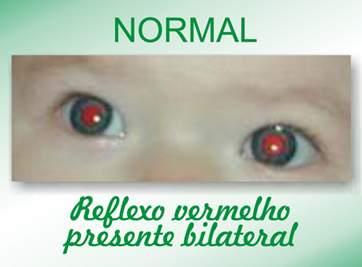 normal - Copia