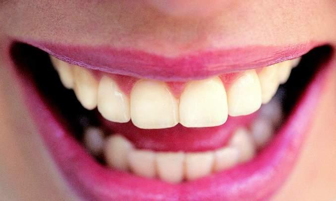 Sintomas diferentes da gravidez que você não conhecia - Sensibilidade nos dentes